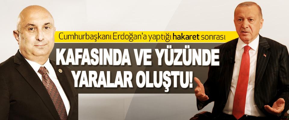 Cumhurbaşkanı Erdoğan'a yaptığı hakaret sonrası Kafasında Ve Yüzünde Yaralar Oluştu!