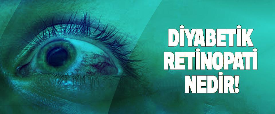 Diyabetik retinopati nedir!