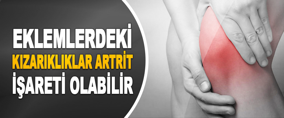 Eklemlerdeki Kızarıklıklar Artrit İşareti Olabilir
