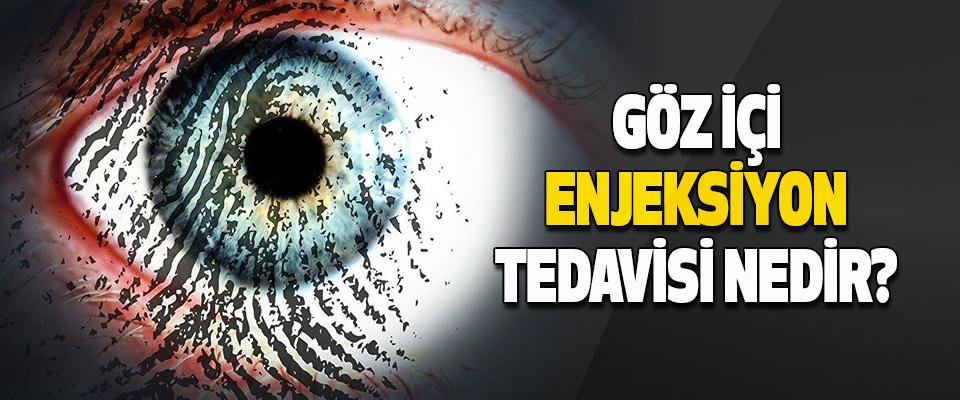 Göz Hastalıklarında, Göz İçi Enjeksiyonu Tedavisi