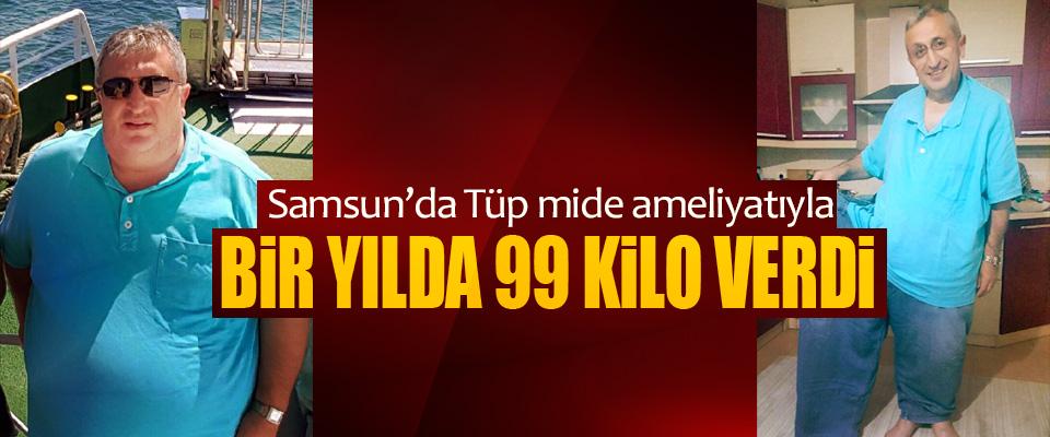 Samsun'da Tüp mide ameliyatıyla 1 Yılda 99 Kilo Verdi