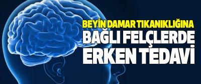 Beyin Damar Tıkanıklığına Bağlı Felçlerde Erken Tedavi