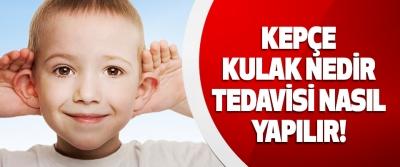 Kepçe Kulak Nedir, Tedavisi Nasıl Yapılır!