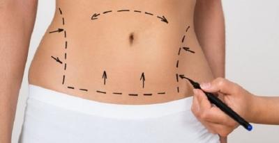 Liposuction Fiyatları