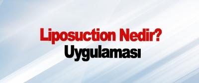 Liposuction Nedir? Uygulaması