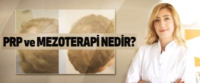 PRP ve mezoterapi nedir?