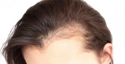 Saç Ekimi Fiyatları