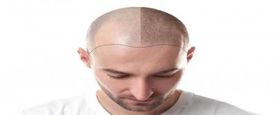 Saç Ekiminde Son Teknoloji; Dr. Ufuk Alatekin Anlatıyor
