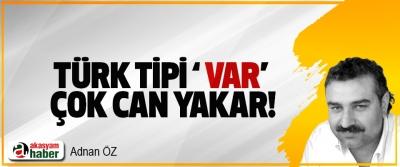 Türk tipi ' var' çok can yakar!